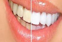 Clareamento dentária caseira