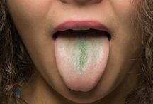 Remedies for Tongue / This board talks about everything related to remedies for tongue. Follow us for more tips and remedies.
