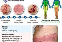 Skins rashes