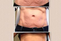 Firm!! / Want to get rid of that cellulite??? Www.pmerkel.nerium.ca