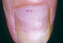 Dermatology Detective - Cases of the Month / by Crutchfield Dermatology