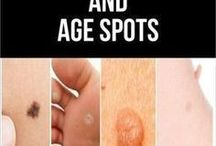 cures for moles,age spots,and warts.