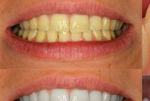 dientes sarro