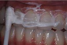 Pekné zuby