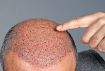 Hair Fall Management / At Skinology, We provide hair fall treatment in Delhi, which includes finding and treating the underlying cause, blood tests to look for deficiencies, recommending medical management as per the diagnosis.