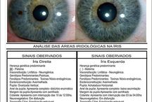 Eye-irisdiagnose