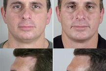 Male Cosmetic Surgery - Before & After Photos
