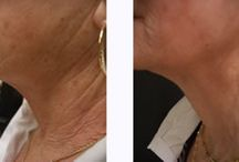 Intracel / Intracel at our Cosmetic Clinic. Acne treatment, reduce fine lines, and more