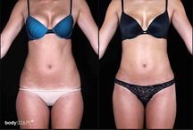 Before & After Photos / View before and after photos of BodyTite, Fractora, Cellulaze, Hi Def Liposuction, SmartLipo Triplex Liposuction for Women, Female Arm Lift, Gynecomastia.