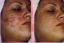 Skin beauty hack