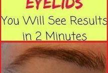 saging eyelids