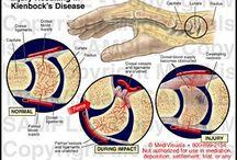 Kienboecks Disease