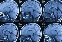 Cognitive Neuroscience