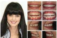 Veneers with Celebrity Dentist Dr Roy Huson! / Why Veneers? For teeth that are severely discolored, chipped or misshapen, veneers create a durable and pleasing smile. Plus, veneers are difficult to stain, making them popular for people seeking a perfect smile. Due to the rand exchange rate it is more cost effective to come on holiday to South Africa and get veneers done. Contact our highly skilled team  for more info on contact@silveroaksdentalclinic.co.za