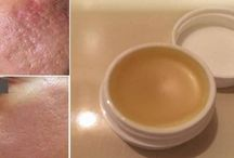 scars remover