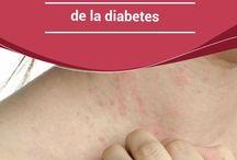Diabetes y sus remedios