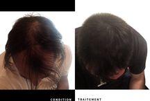 Clinique Chloé - Traitements AVANT/APRÈS / Photos avant/après de tous nos traitements !