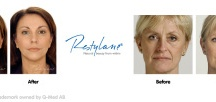 My Skin Design /  Myskindesign offers advice and treatments to aid with facial rejuvenation. myskindesign.co.uk
