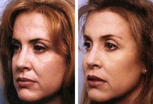 Facial Rubbing Exercises For Firming Drooping Facial Skin / Face Flexing Aerobics For A Honed, More Youthful Face