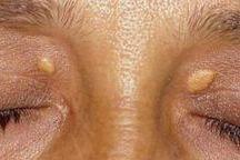 bradavice a fibromy