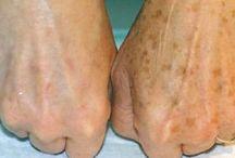 schiarire le macchie scure della pelle
