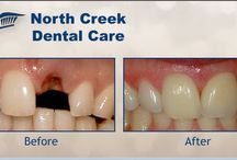 Smile Gallery / North Creek Dental Care is the best choice for a dentist in Tinley Park IL 60477. We provide a full range of general, family, cosmetic and implant dentistry services to our dental patients. Dentist, Tom Ryan and his dental treatment team are highly skilled professionals who provide quality dental care in a welcoming relaxed dental environment - you are important to us! http://northcreekdentalcare.com/