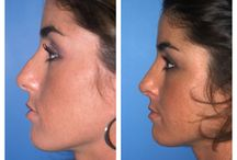 Before & After: Nose Surgery / Here you can view actual patient before and after photographs from surgeons who are ASPS members and certified by The American Board of Plastic Surgery. These photographs represent typical results, but not everyone who undergoes plastic surgery will achieve the same.