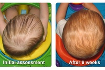 My Helmet Baby! / Info and tips for dealing with Avery's  plagiocephaly and torticollis