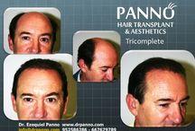 Técnica exclusiva de injerto capilar del Dr. Panno. / Tricomplete la Técnica exclusiva de Trasplante Capilar del Dr. Panno para cobertura de grandes zonas con alopecia.