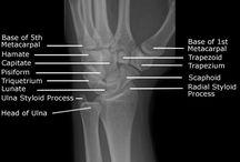 Wrist Bones