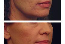 Aesthetic Laser Treatments