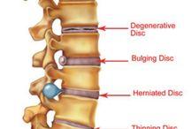 Spine pathologies