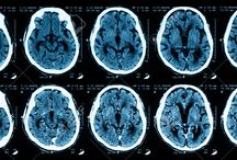 Brain Injury / A useful resource of books, films and online information relating to Brain Injury