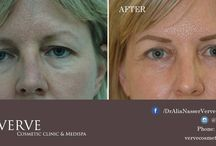 Eyes - Blepharoplasty / The goals of blepharoplasty are to enhance one's appearance without greatly altering one's identity. Our technique is tailored for each patient taking into account their specific anatomy, ethnicity and personal goals.
