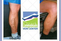 Patient Before & After Pictures / Patients treated for varicose veins, spider veins, ulcers, etc. Typically use one of the following or a combination of: Radiofrequency ablation, laser ablation, Venaseal, medical sclerotherapy. Dr. Haney and the staff can have your legs looking great in no time!