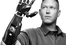 Prosthetic Limb Articles / I found these articles interesting