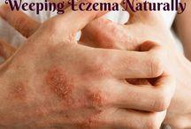 Weeping Eczema