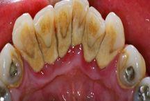 teeth remedy