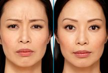 Botox / Justmelt NYC's Dr. Bruce G. Freund offers his injectable expertise in Botox, Dysport and Xeomin to his patients.