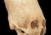 Arqueología - Huesos