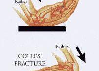 Hand Frakturen
