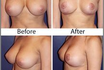 Breast Procedures / Breast Augmentations, breast reductions, breast lifts, all breast surgery