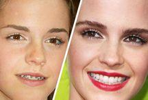 Celebrities with Braces