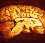 Θεραπευτικά πρωτόκολλα στην Νευρολογία