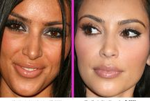 Plastic Surgery...Yes or No?