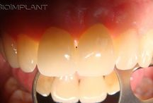 QUIZ QUIZ QUIZ / ***Anyone able to see the truly anatomic ceramic implant on this picture?***  :) Please find solution on Facebook: https://www.facebook.com/BioImplant/ :)  You will find additional of videos on multi-rooted truly anatomic dental implants on  YouTube:https://www.youtube.com/channel/UCigwOkz4kRAJ82Jw5jxg5hw Visit also our website for more information: www.bioimplant.at