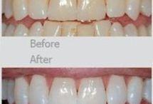 White teeth remedy