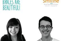 Orthodontics in Hyderabad / Smiline Dental is best Orthodontics in Hyderabad, Madhapur and Punjagutta. Orthodontic is teeth braces, that improve the positioning of the teeth.