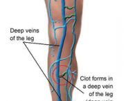 Long Island Vein Treatment / Advanced Vein Care Solutions reveals why Long Island vein treatments are some of this decade's best medical breakthroughs for treating vein disease.