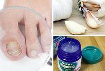 Funghi piedi e mani